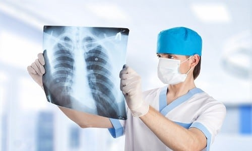 Рентгенологическое исследование позволяет диагностировать наличие отложений в органе