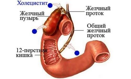 При холецистите болит живот над пупком и при этом боль отдает в правое подреберье. Появляется отрыжка и горечь во рту