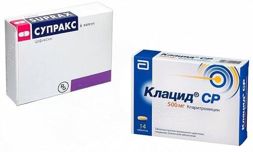Антибиотики Клацид или Супракс применяется для борьбы с разными инфекциями (дыхательных путей, мочеполовой системы и т. д.) у взрослых и детей