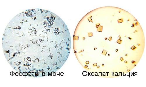 Взвесь, полученная из смеси уратов, оксалатов и фосфатов солевых образований называется гиперэхогенной