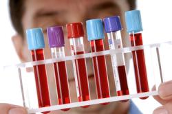 Анализ крови на варикоцеле
