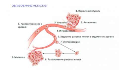Метастазы - результат занесения с кровью или лимфой злокачественных клеток из других органов (печени, желчного пузыря, желудка, легких)