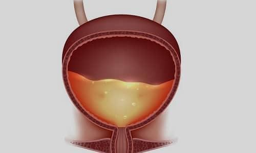 Переходно-клеточный эпителий - это разновидность эпителия мочевого пузыря
