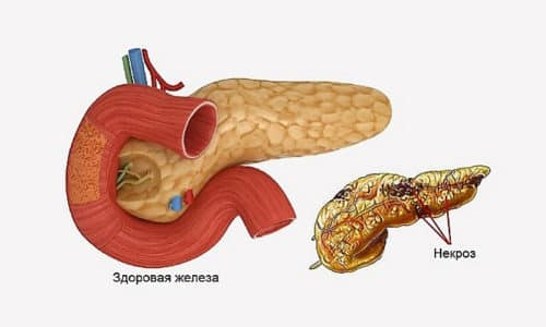 При панкреонекрозе клетки поджелудочной железы переваривают сами себя, в результате чего происходит их отмирание и некроз тканей