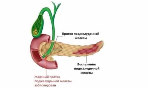 Причин возникновения воспаления поджелудочной железы очень много. Это нездоровый образ жизни, интоксикации, злоупотребление алкоголем, жирной пищей, переедание