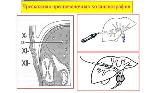 Процедура ЧЧХ заключается в введении йодсодержащего контрастного вещества напрямую в желчные протоки и рентгенографии брюшины