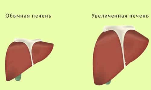 При заболеваниях почек и печени рекомендуется использовать препарат с осторожностью