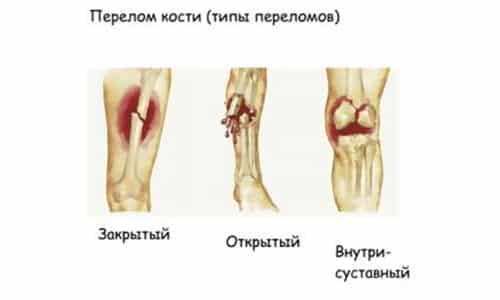 Препарат повышает прочность костей, препятствуя возникновению новых переломов. Обладает сильным болеутоляющим эффектом