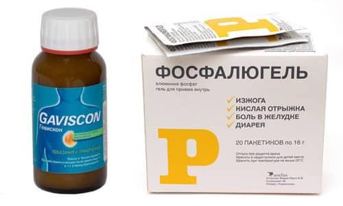 Гевискон или Фосфалюгель способны в течение четверти часа облегчить дискомфорт в желудке и изжогу
