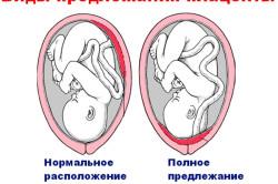 Предлежание плаценты - показание к КС
