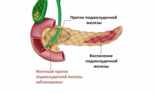 Панкреатит представляет собой воспаление поджелудочной железы