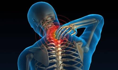 Тошнота и головокружение - это проявления, которые характерны для шейного остеохондроза