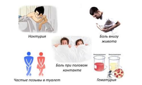 Симптомы болезни доставляют пациенткам множество неудобств