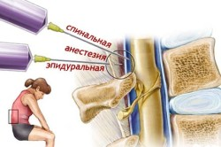 Схема спинальной анестезии