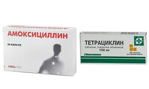 Тетрациклин и Амоксициллин антибактериального действия получили широкое распространение при проведении медикаментозной терапии большого количества патологий