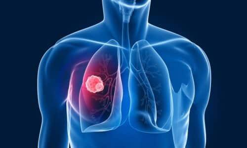 Вторичный цистит развивается как осложнение на фоне других заболеваний, например при туберкулезе