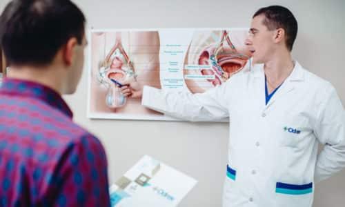 Лечение поллакиурии назначает уролог