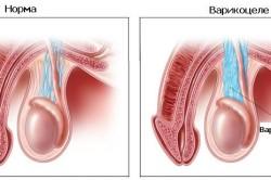 Схема варикоцеле