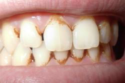 Извлечение зубного камня - показание к аппликационной анестезии