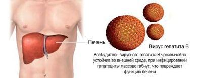 гепатит-B печень