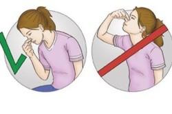 Правильные действия при кровотечении из носа