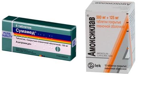 Сумамед или Амоксиклав назначаются в терапии инфекционных патологий, спровоцированных патогенными возбудителями