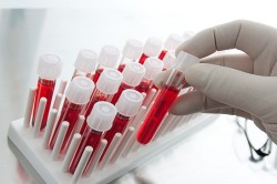Анализ крови для диагностики ХОБЛ