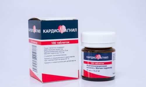 Кардиомагнил назначают при нарушении кровотока и артериальных патологиях