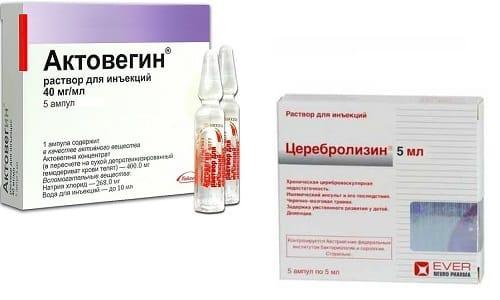 Актовегин и Церебролизин - препараты, помогающие справиться с перенесенными травмами головного мозга и последствиями инсульта