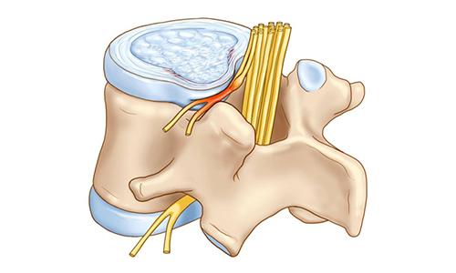 Под воздействием магнитотерапии происходит расслабление мышц и исчезает компрессия нервных корешков