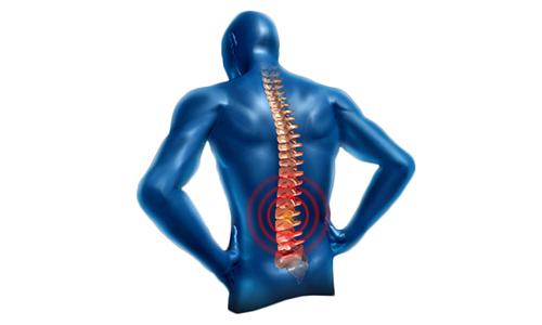 Симптомы, которые сопровождают грыжу позвоночника, зависят от того, в каком месте она находится,к примеру в поясничном отделе