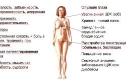 Гипотиреоз - причина повышения пролактина