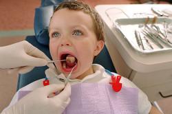 Контроль врача при кандидозном стоматите у детей