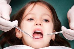 Озонирование зубов детям