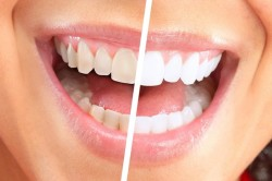 Польза зубной нити при налете на зубах