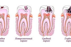 Развитие кариеса в молочных зубах