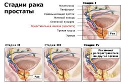 Стадии рака простаты