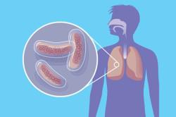 Туберкулез - противопоказание к сдаче тромбоцитов