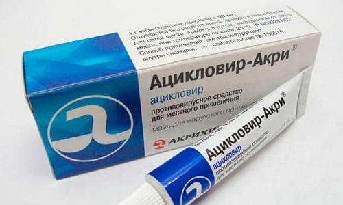 Ацикловир - дешевая мазь (27 рублей), но отличается эффективностью в борьбе с герпесом