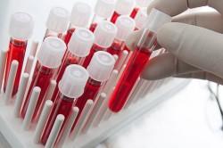 Проведение анализа крови на мочевую кислоту