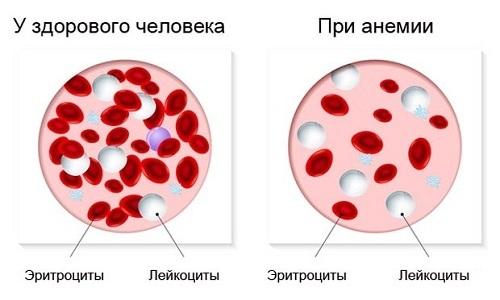 Показание к выполнению хирургического вмешательства - анемия