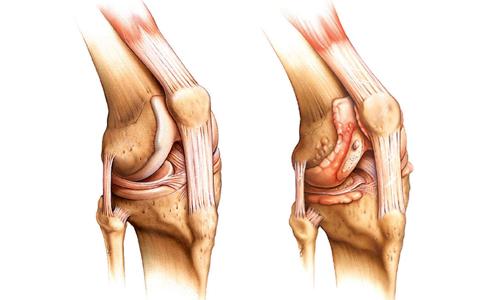 Спровоцировать развитие кисты коленного сустава могут дегенеративно-дистрофические заболевания опорно-двигательной системы (артрит)
