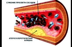 Атеросклероз - одна из причин носового кровотечения