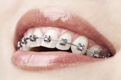 Брекеты как причина боли в челюсти