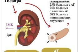 Схема гиперурикемии