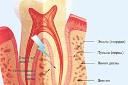 Причины возникновения гиперестезии зубов