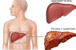 Цирроз - причина рвоты и поноса