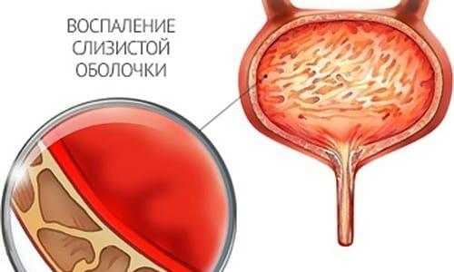 При попадании вируса в мочеиспускательный канал возникает риск развития цистита