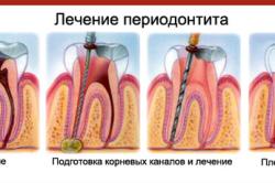 Поэтапное лечение периодонтита