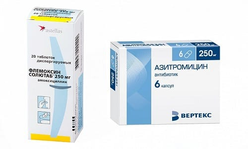 Для лечения болезней, спровоцированных бактериальной патологической микрофлорой, могут использоваться Азитромицин или Флемоксин Солютаб